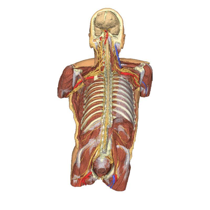 3d Printed Anatomical Models Erler Zimmer 3d Anatomy Models